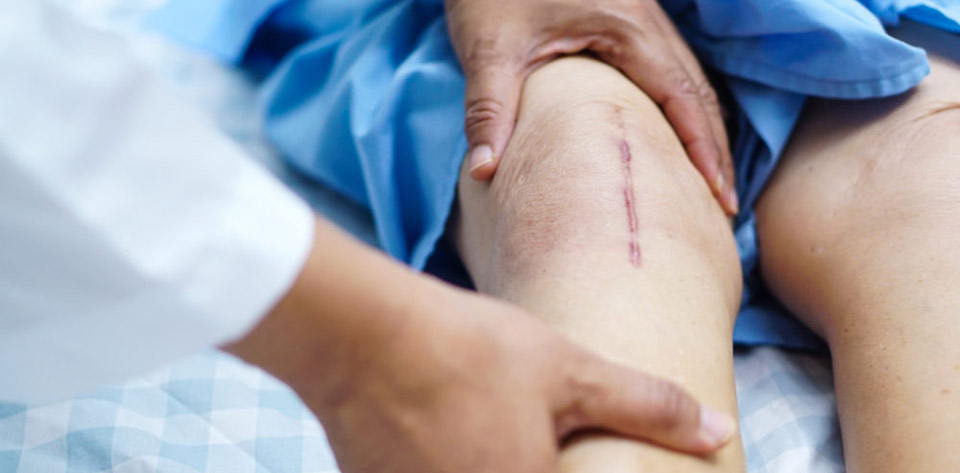 فیزیوتراپی درد زانو