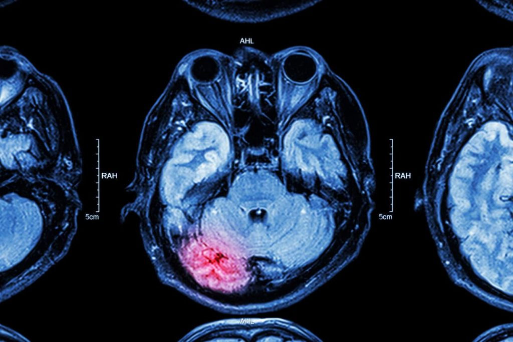 تشخیص مغزی بیماری صرع