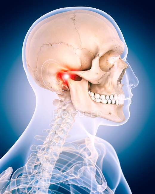 مفصل فکی گیجگاهی TMJ
