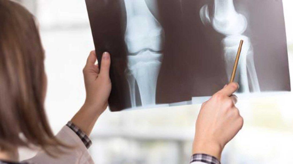 درمان آرتروز قبل از جراحی