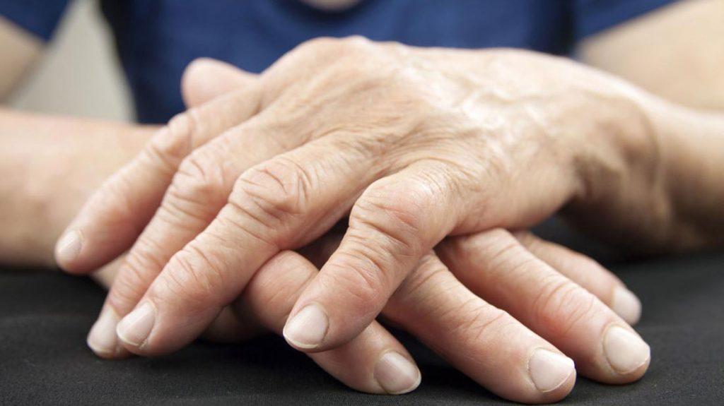 آرتروز و درد دست