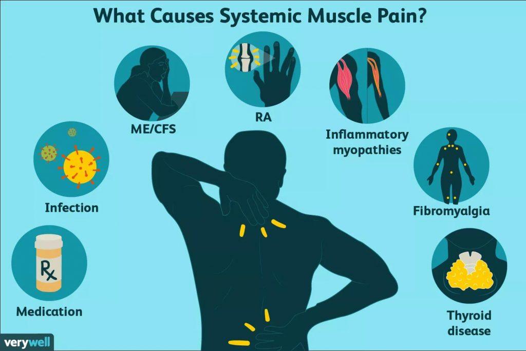 درد عضلانی سیستمیک