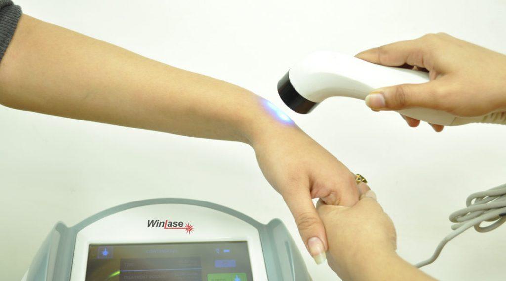 لیزر درمانی دست