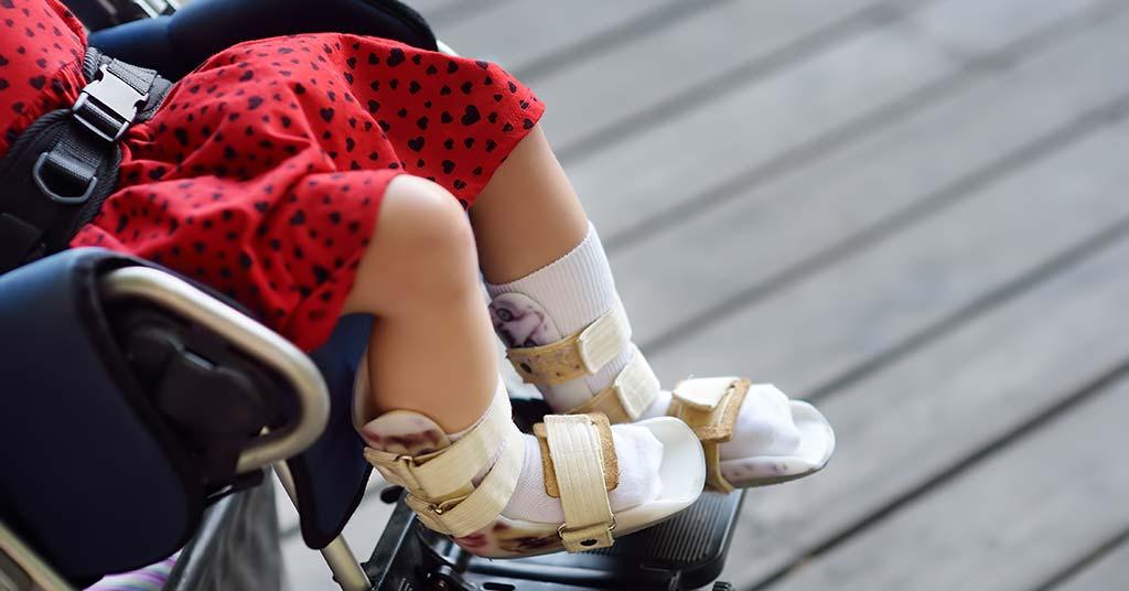 بچه های فلج مغزی هیچ وقت نمی توانند راه بروند