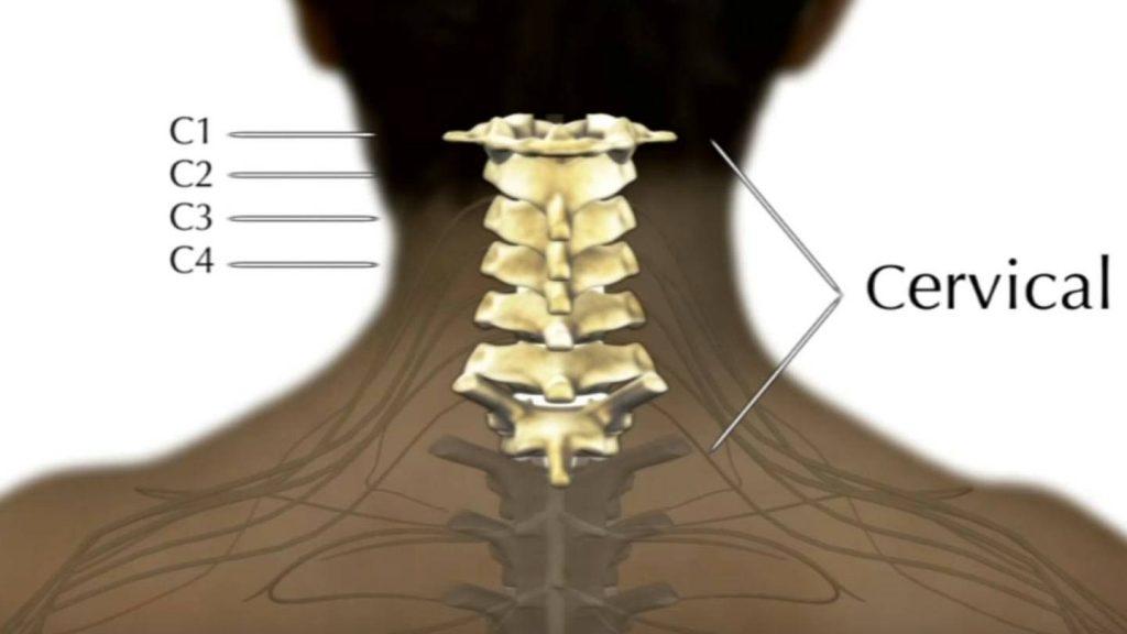 آسیب مهره های گردن