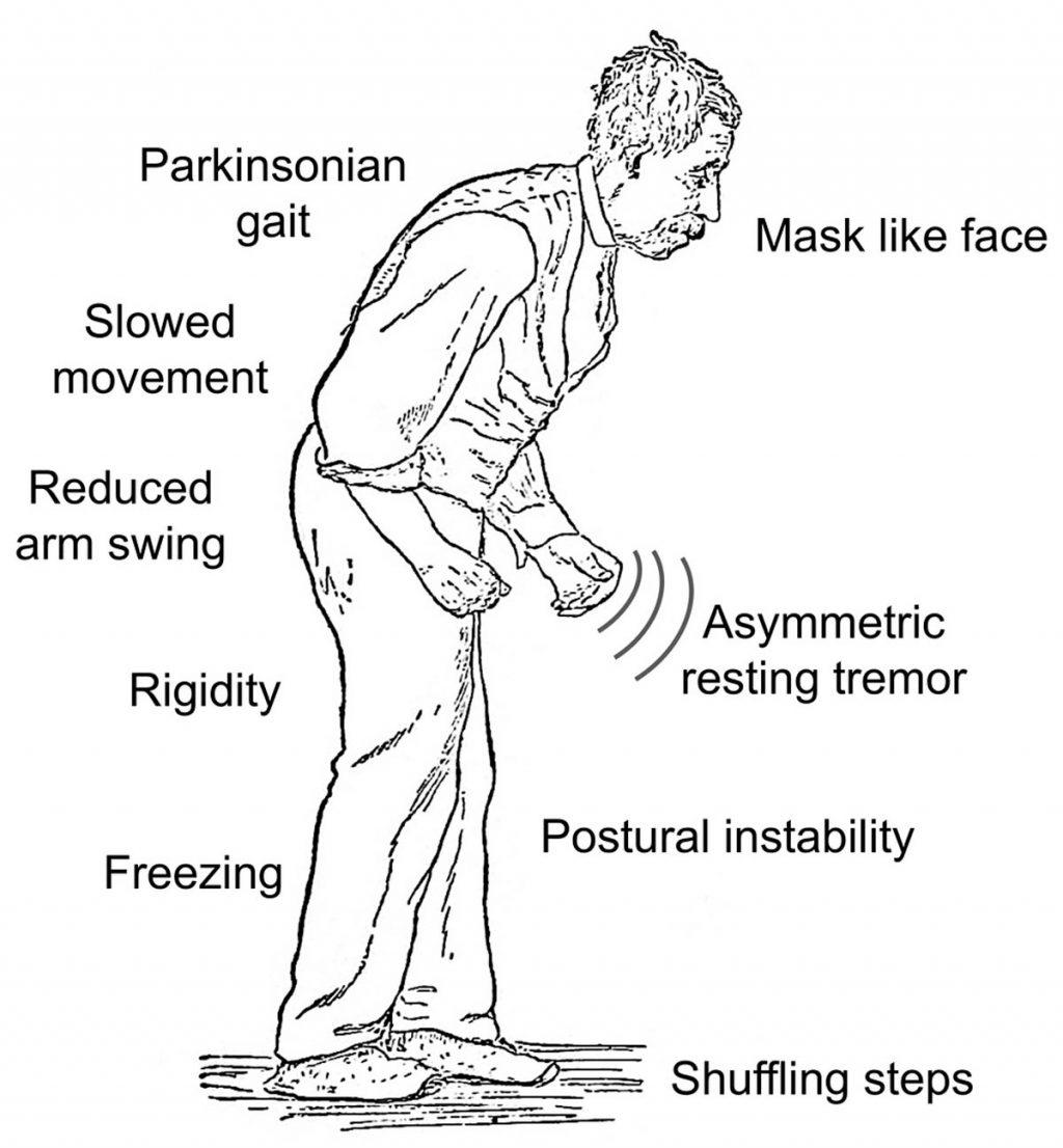 علائم بیماری پارکینسون
