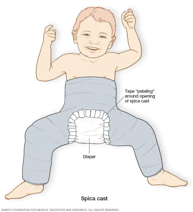 درمان ناهنجاری مفصل ران با گچ گرفتن تمام بدن