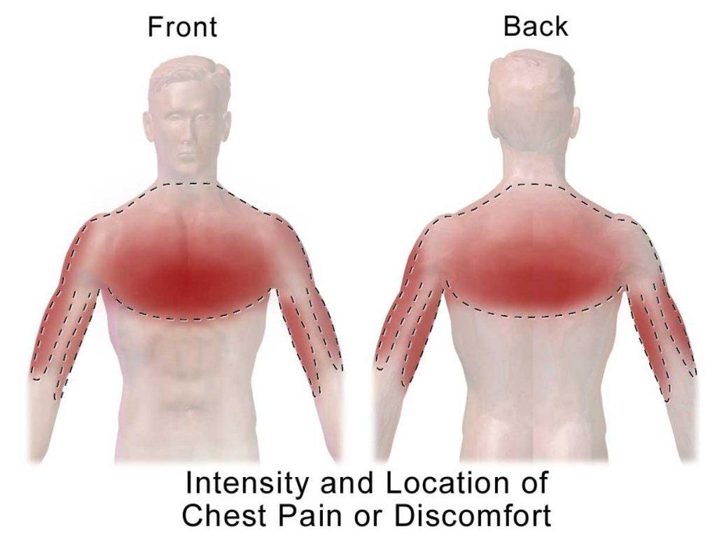 سرطان ریه و کمر درد