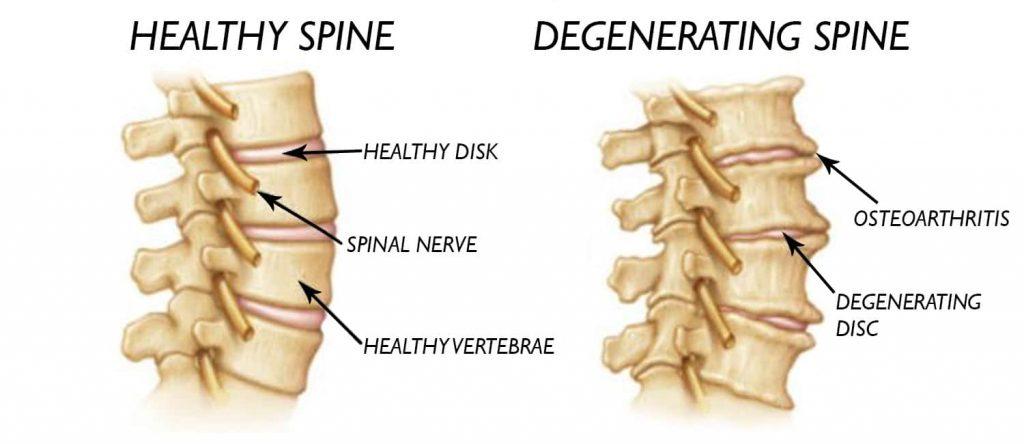 دیسک گردن علت زمینه ای گردن درد