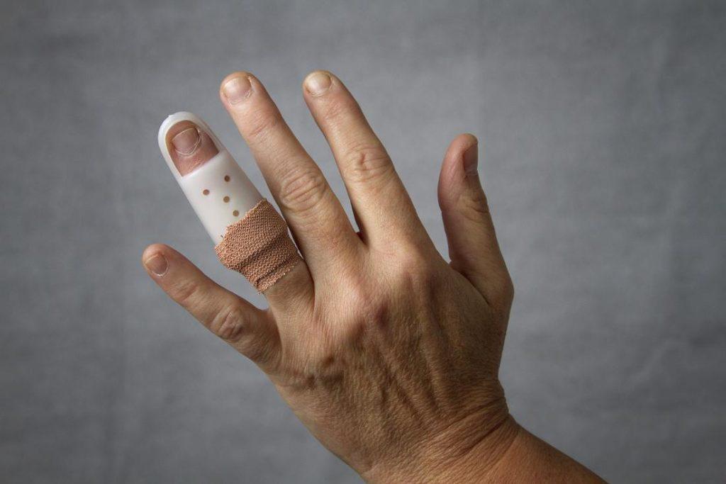 درمان در رفتگی انگشت دست