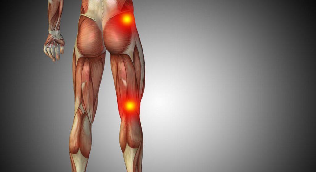 درد سیاتیک پا و لگن