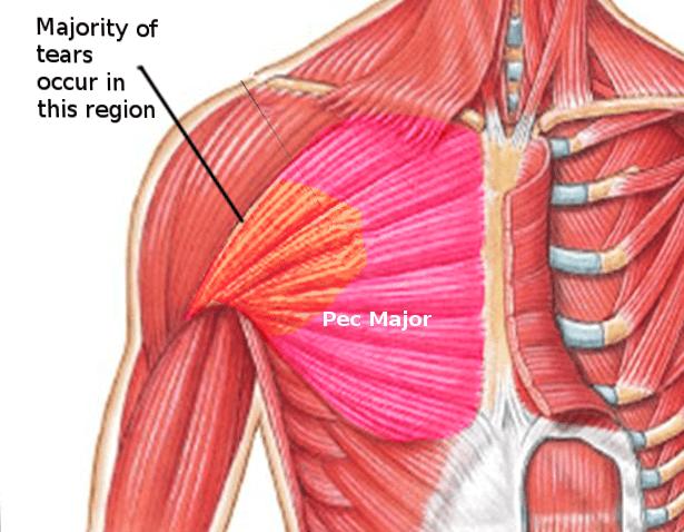 علائم پارگی ماهیچه و عضله قفسه سینه