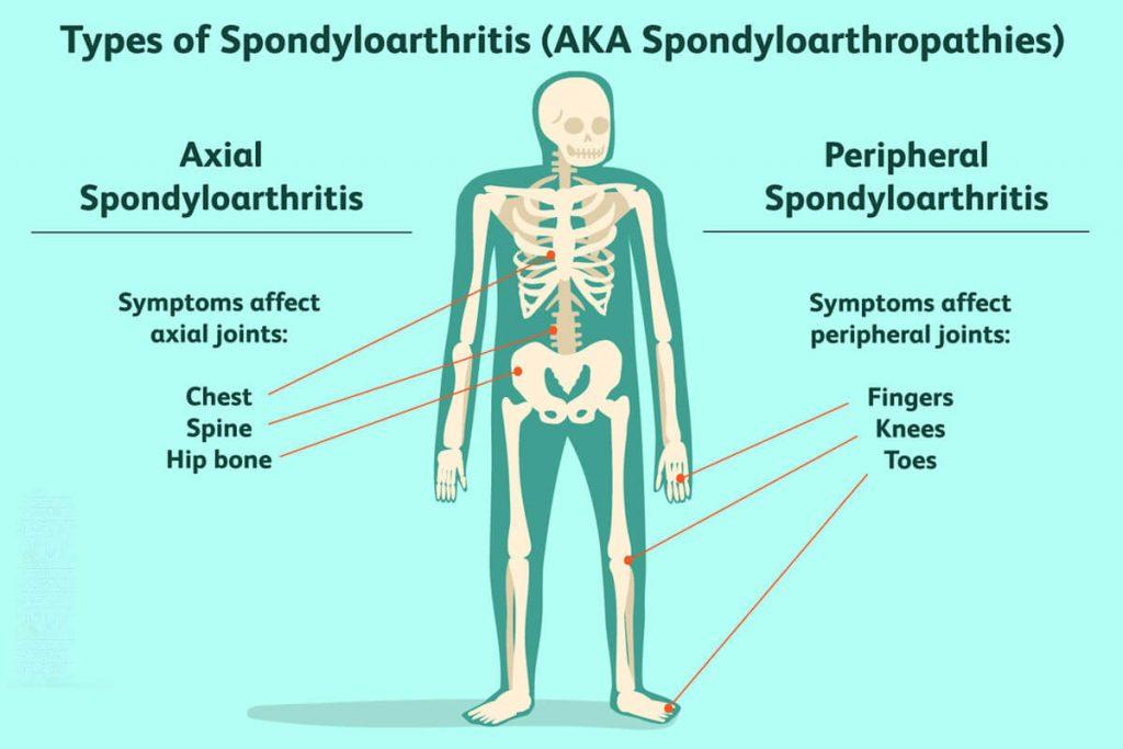 تشخیص اسپوندیلوآرتروپاتی یا اسپوندیلوآرتریت