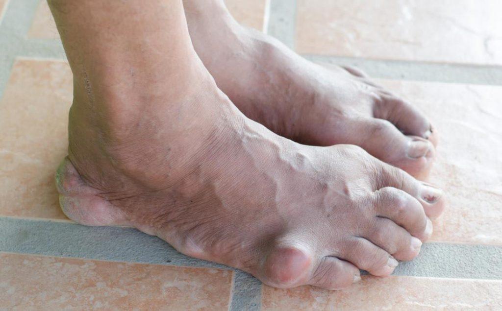 علائم نقرس در پا
