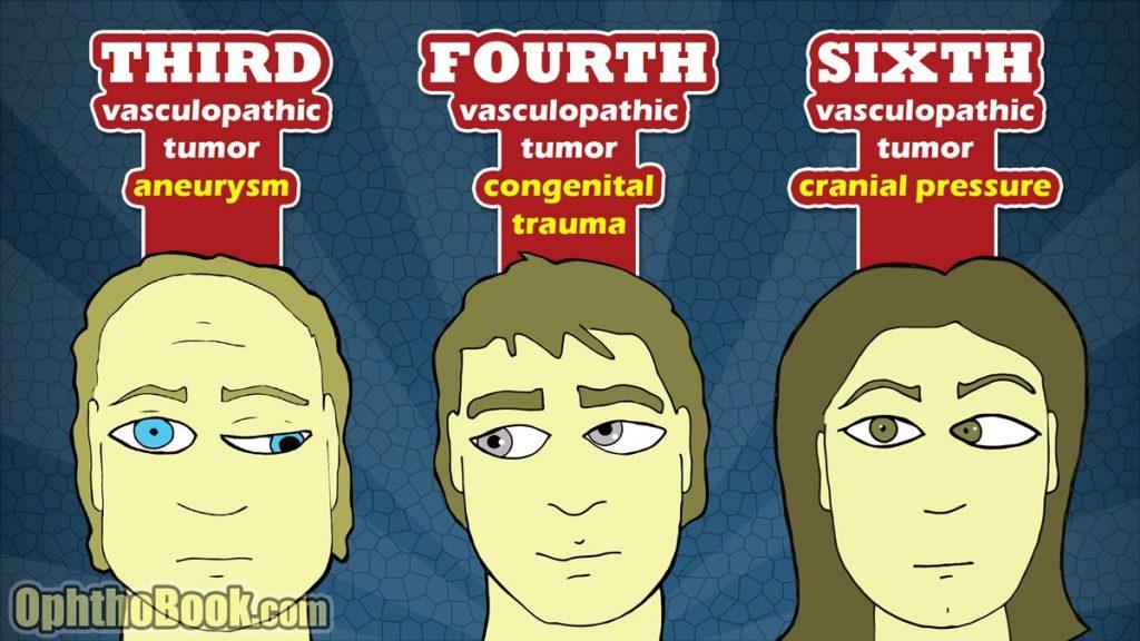 فلج عصب چشم