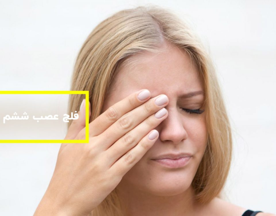 فلج عصب ششم چشم