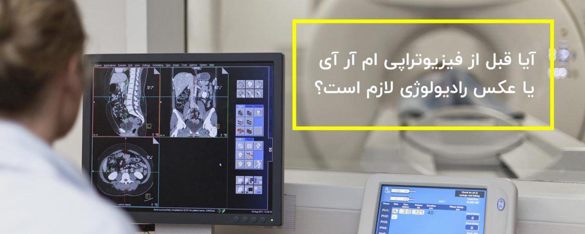فیزیوتراپی ام آر آی یا عکس رادیولوژی