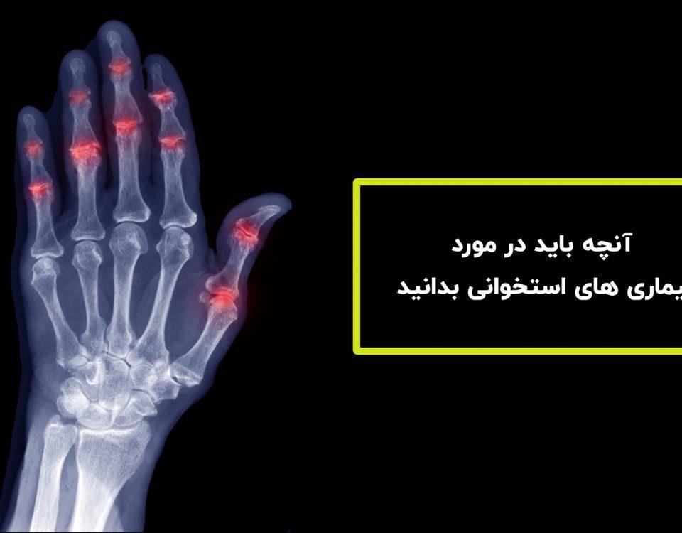 بیماری های استخوانی