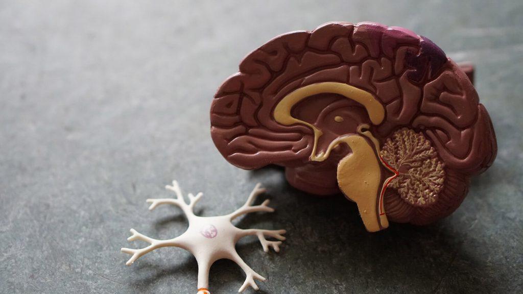 تشخیص سندرم سروتونین