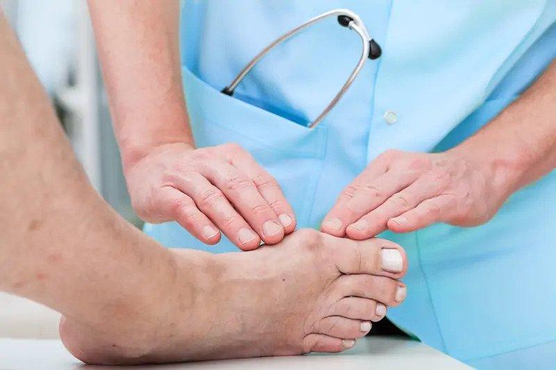 تشخیص آرتروز پا و مچ پا